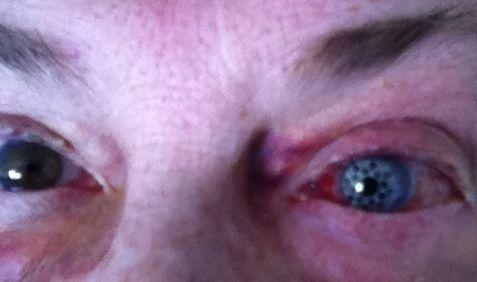Bionic eye close up